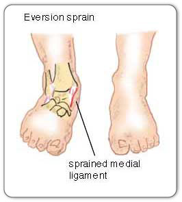 https://somertonphysio.ie/wp-content/uploads//2018/07/http-www-mendmeshop-ca-_img-eversion-sprain-jpg.jpeg