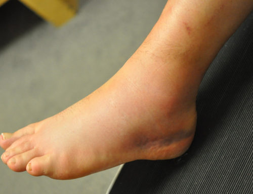 Ankle Sprains in GAA players