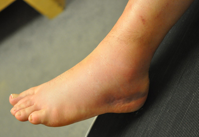 ankle sprains in gaa players somerton physiotherapy clinic