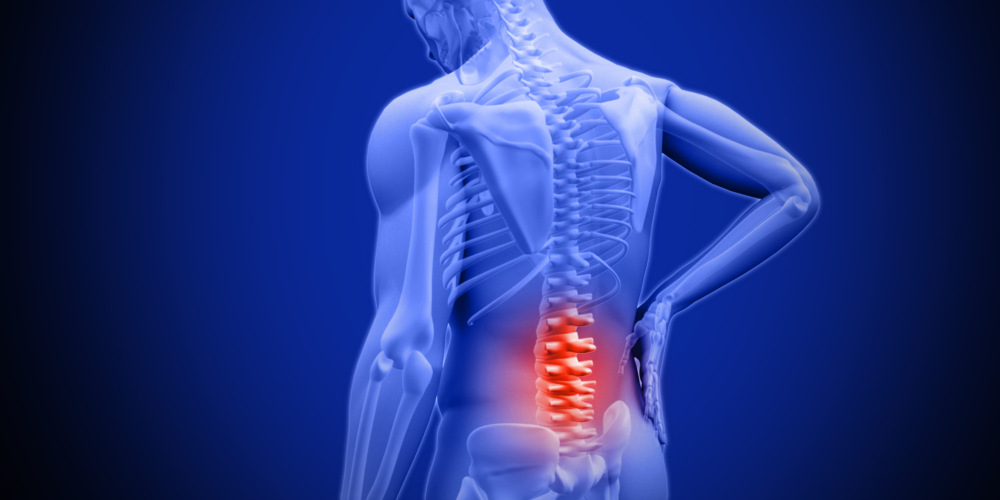 Lower Back Pain - Somerton Physiotherapy Clinic