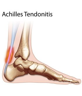 soreness or swelling of your achilles tendon how do i get it better