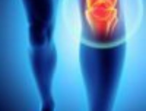 Physiotherapy & Osteoarthritis